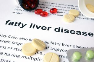 Paper with fatty liver disease and pills. Medical concept.